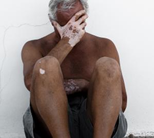 老年白癜风应怎样调节饮食