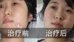 治疗脸部白癜风时应该注意些什么